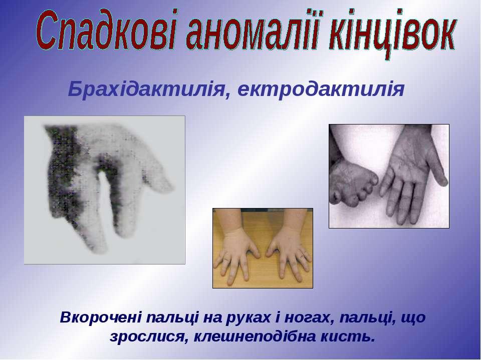 Вкорочені пальці на руках і ногах, пальці, що зрослися, клешнеподібна кисть. ...