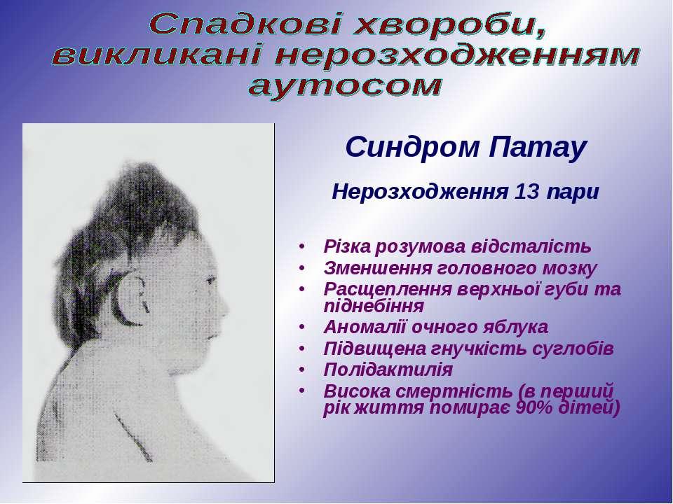 Різка розумова відсталість Зменшення головного мозку Расщеплення верхньої губ...