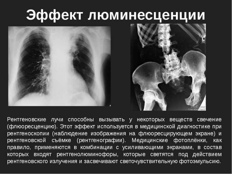 Рентгеновские лучи способны вызывать у некоторых веществ свечение (флюоресцен...