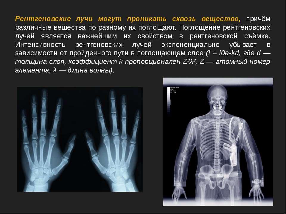 Рентгеновские лучи могут проникать сквозь вещество, причём различные вещества...