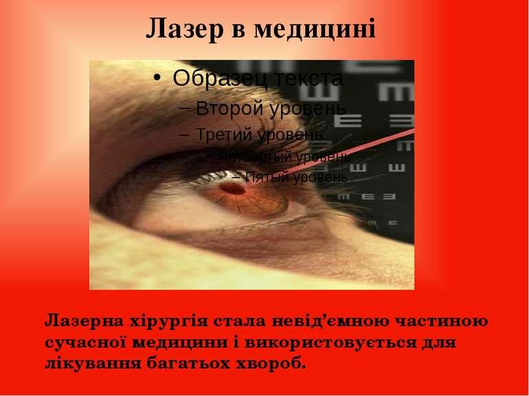 Лазер в медицині Лазерна хірургія стала невід'ємною частиною сучасної медицин...
