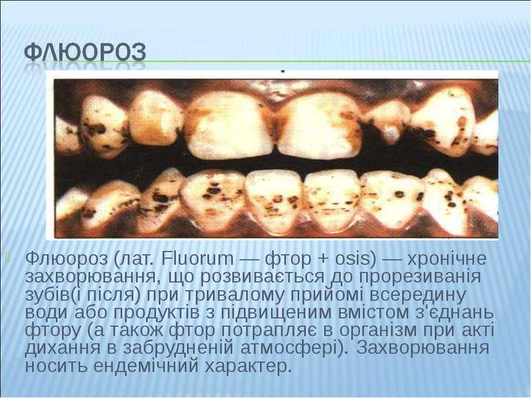 Флюороз (лат. Fluorum — фтор + osis) — хронічне захворювання, що розвивається...