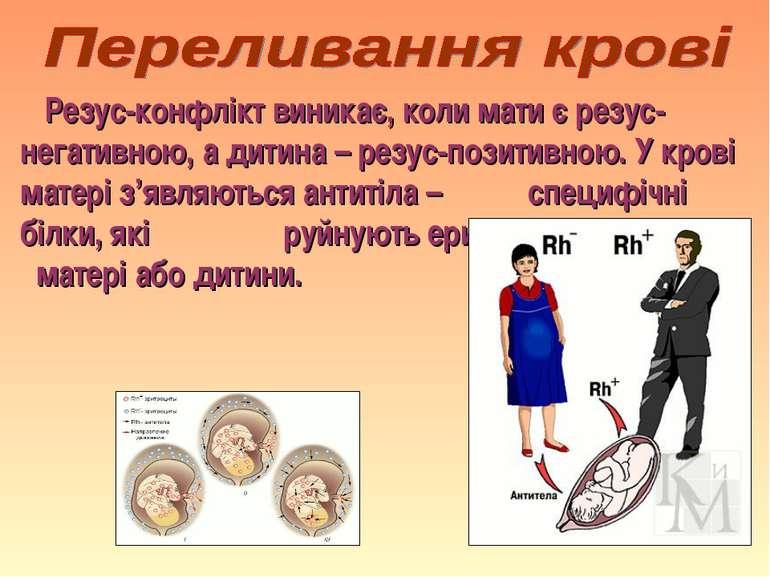 Резус-конфлікт виникає, коли мати є резус-негативною, а дитина – резус-позити...