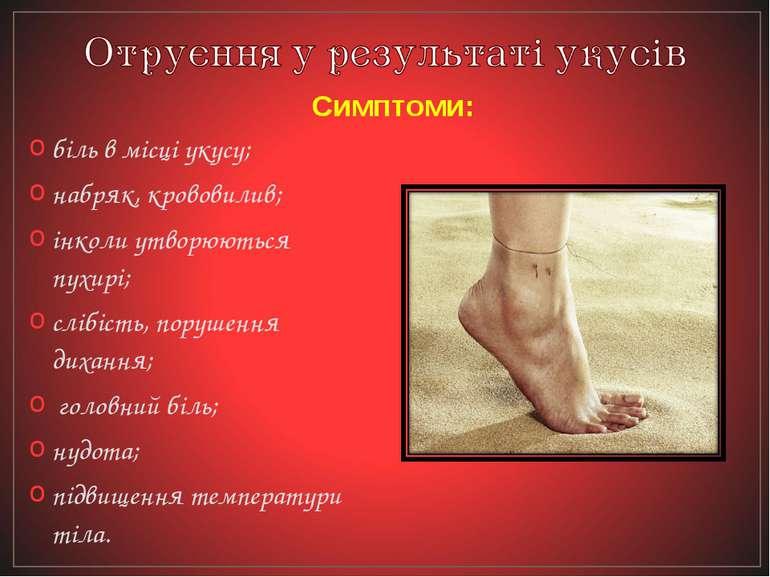 біль в місці укусу; набряк, крововилив; інколи утворюються пухирі; слібість, ...