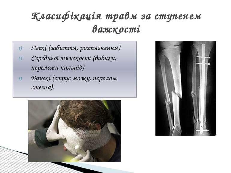 Легкі (забиття, розтягнення) Середньої тяжкості (вивихи, переломи пальців) Ва...