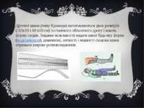 Дротяні шини (типу Крамера) виготовляються двох розмірів (110x10 і 60 x10 см)...