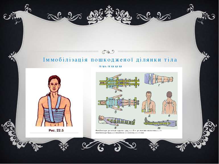 Іммобілізація пошкодженої ділянки тіла людини