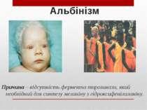 Альбінізм Причина – відсутність фермента тирозинази, який необхідний для синт...