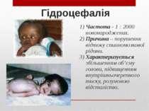 Гідроцефалія 1) Частота - 1 : 2000 новонароджених. 2) Причина – порушення від...