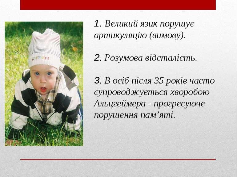 1. Великий язик порушує артикуляцію (вимову). 2. Розумова відсталість. 3. В о...