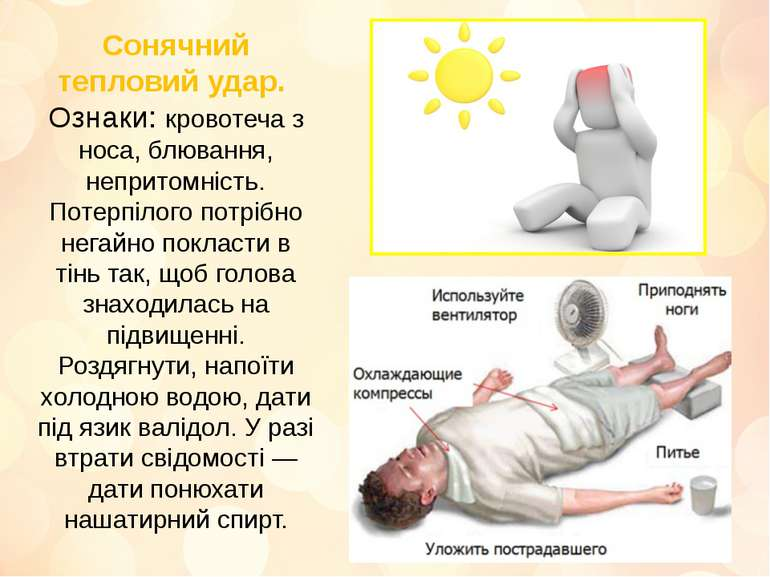 Сонячний тепловий удар. Ознаки: кровотеча з носа, блювання, непритомність. По...