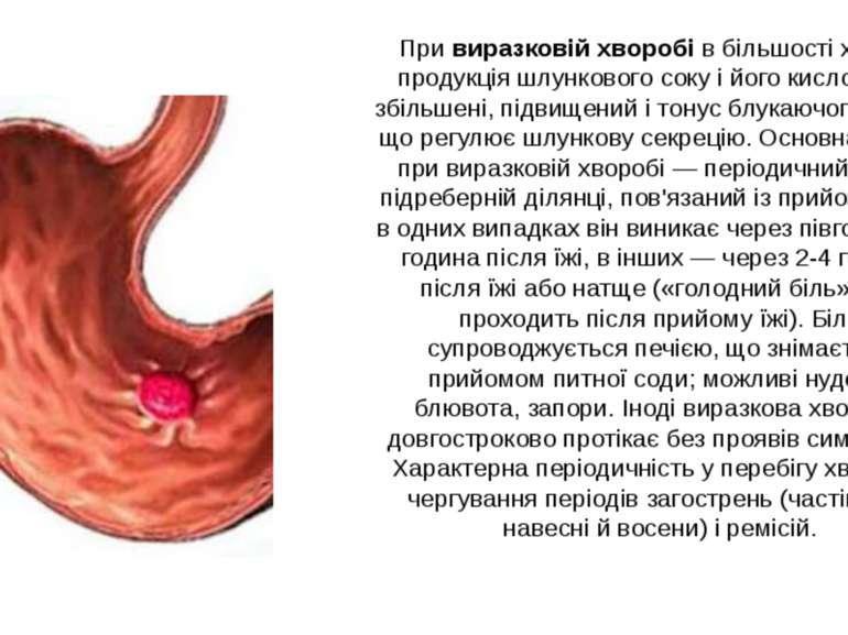 При виразковій хворобі в більшості хворих продукція шлункового соку і його ки...