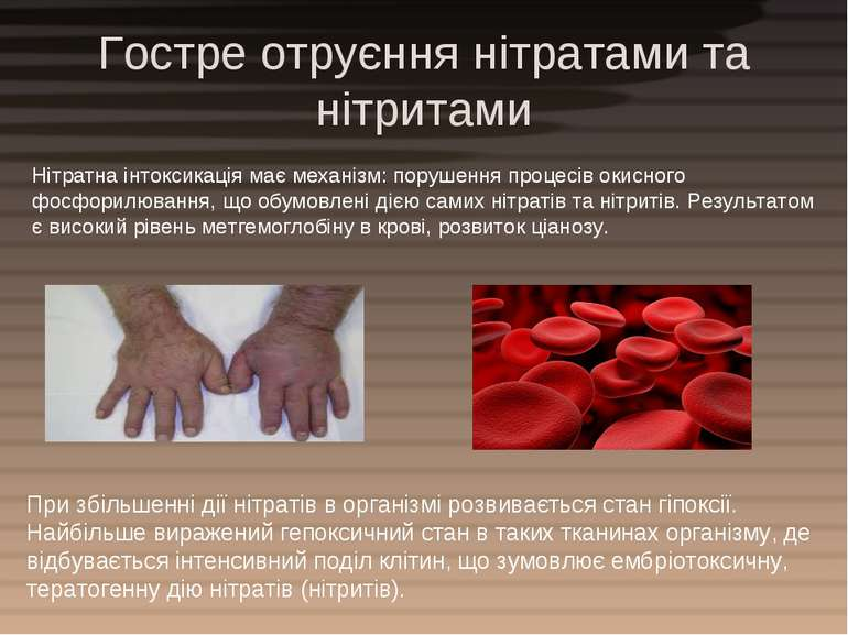 Гостре отруєння нітратами та нітритами Нітратна інтоксикація має механізм: по...