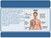 Грип має симптоми, схожі з іншими гострими респіраторними вірусними інфекціям...