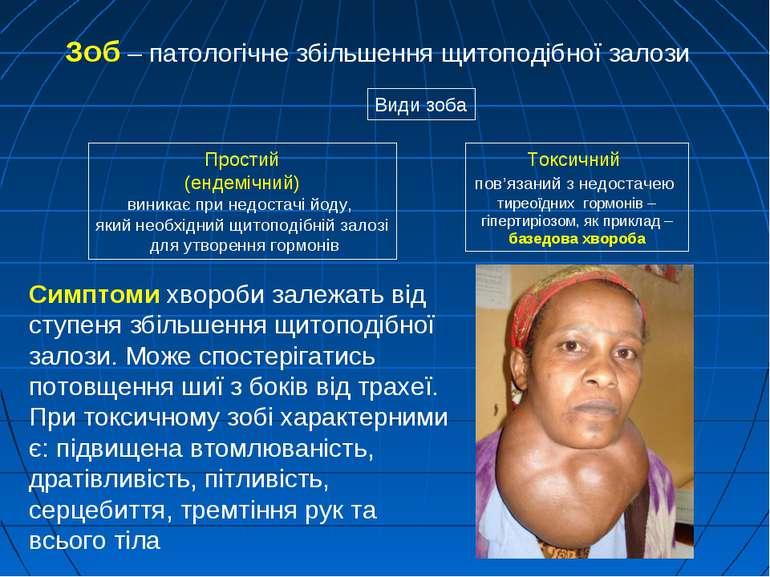 Зоб – патологічне збільшення щитоподібної залози Простий (ендемічний) виникає...