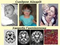 Синдром Айкарді Хвороба Гантінгтона