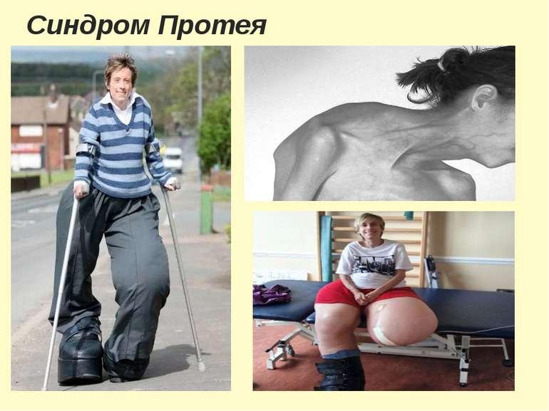 Синдром Протея