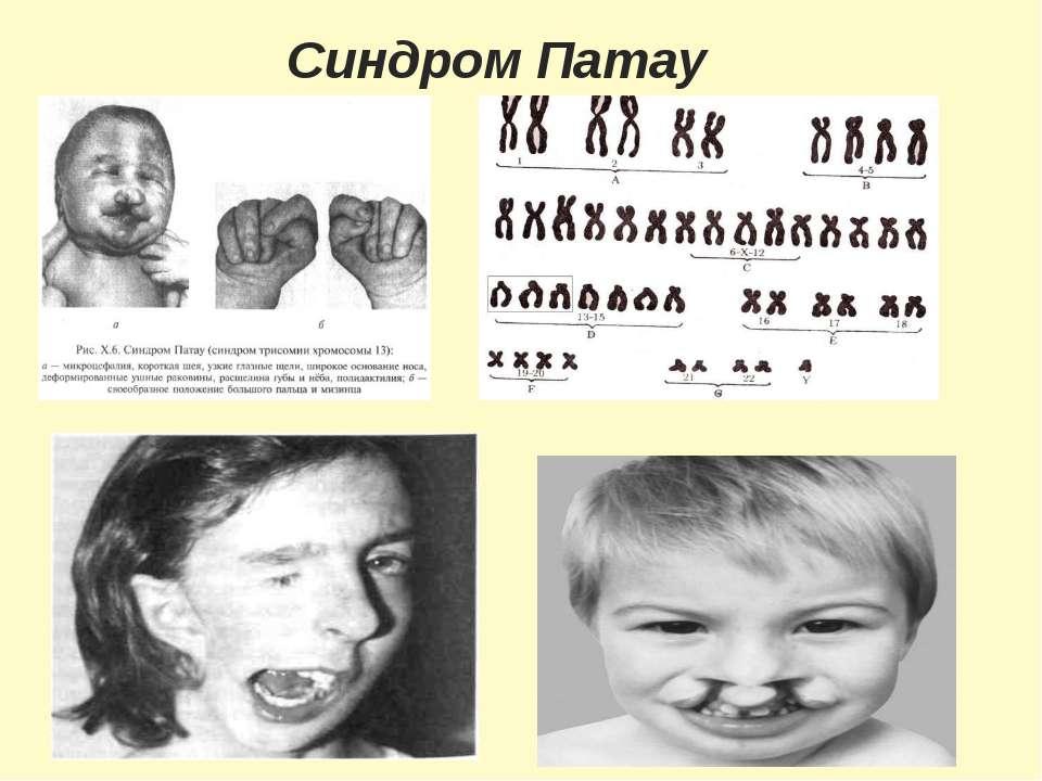 Синдром Патау