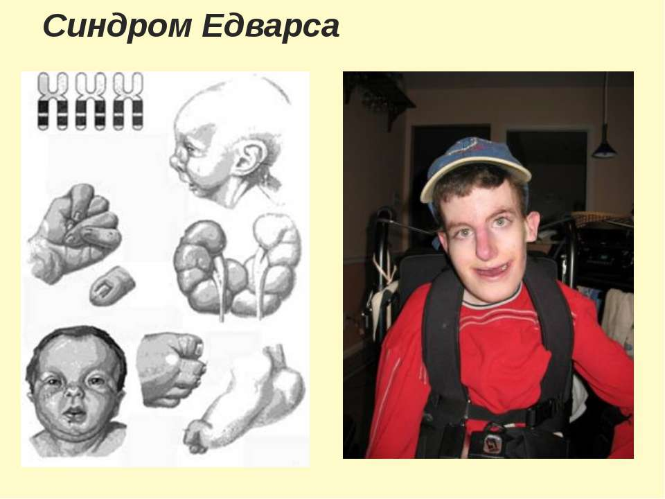 Синдром Едварса