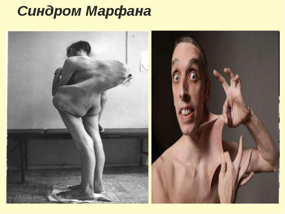Синдром Марфана