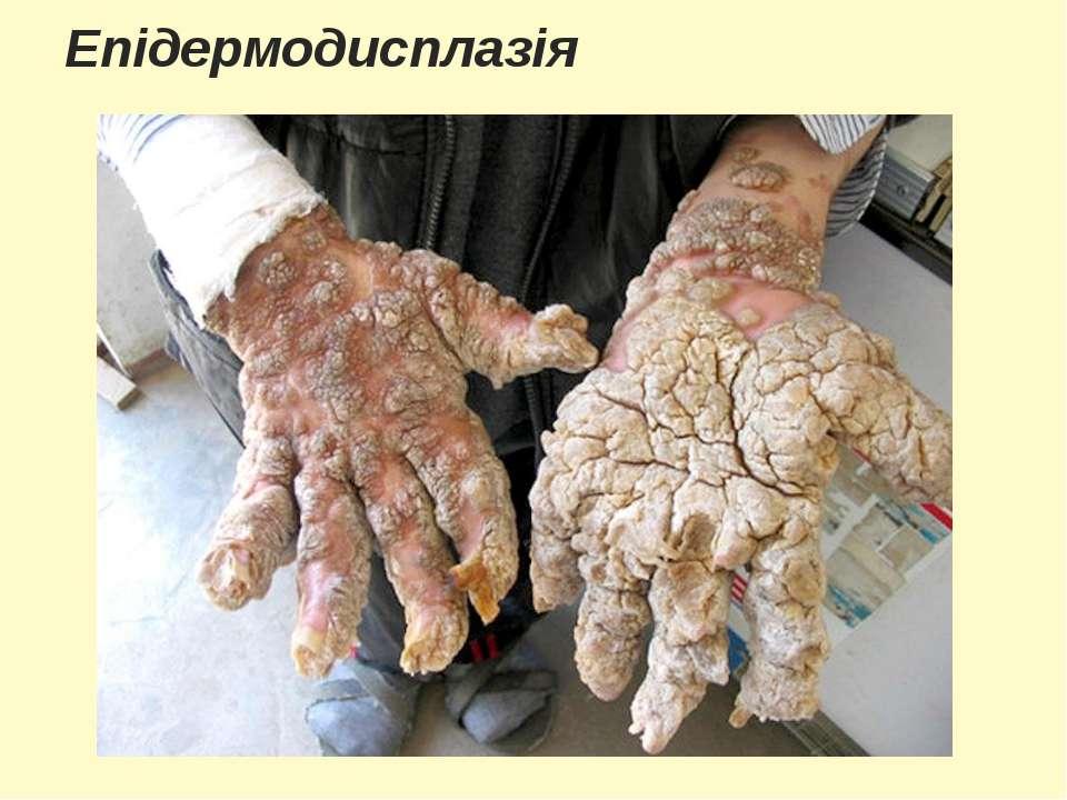 Епідермодисплазія
