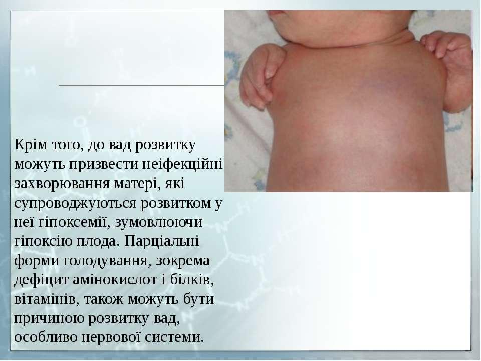 Крім того, до вад розвитку можуть призвести неіфекційні захворювання матері, ...