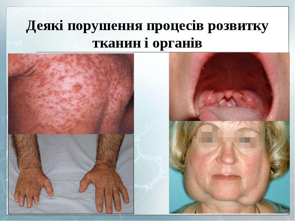 Деякі порушення процесів розвитку тканин і органів