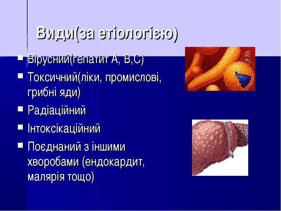 Види(за етіологією) Вірусний(гепатит A, B,C) Токсичний(ліки, промислові, гриб...