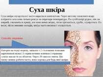 Суха шкіра Суха шкіра злущується і часто видається натягнутою. Через нестачу ...