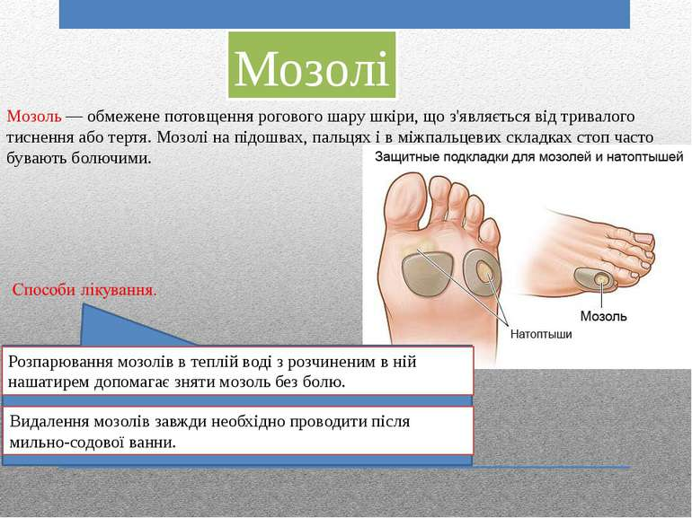 Мозолі Мозоль — обмежене потовщення рогового шару шкіри, що з'являється від т...