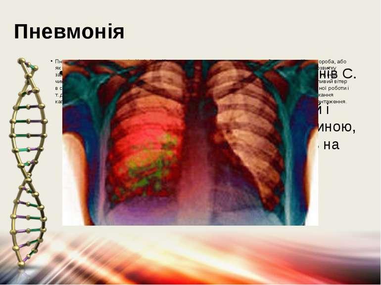 Пневмонія Пневмонія-запалення легенів. Це інфекційне захворювання легень, що ...