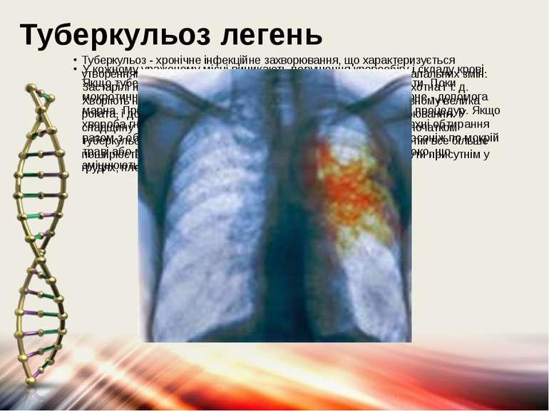 Туберкульоз легень У кожному ураженому місці виникають порушення кровообігу і...