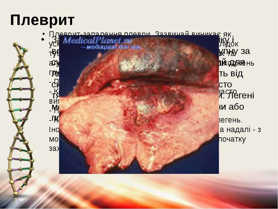 Плеврит Плеврит-запалення плеври. Зазвичай виникає як ускладнення запалення л...