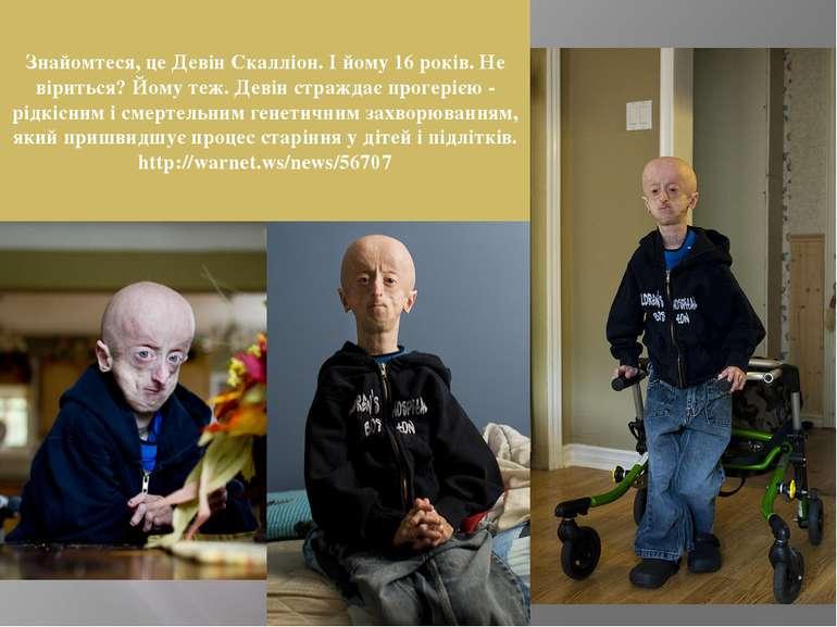 Знайомтеся, це Девін Скалліон. І йому 16 років. Не віриться? Йому теж. Девін ...