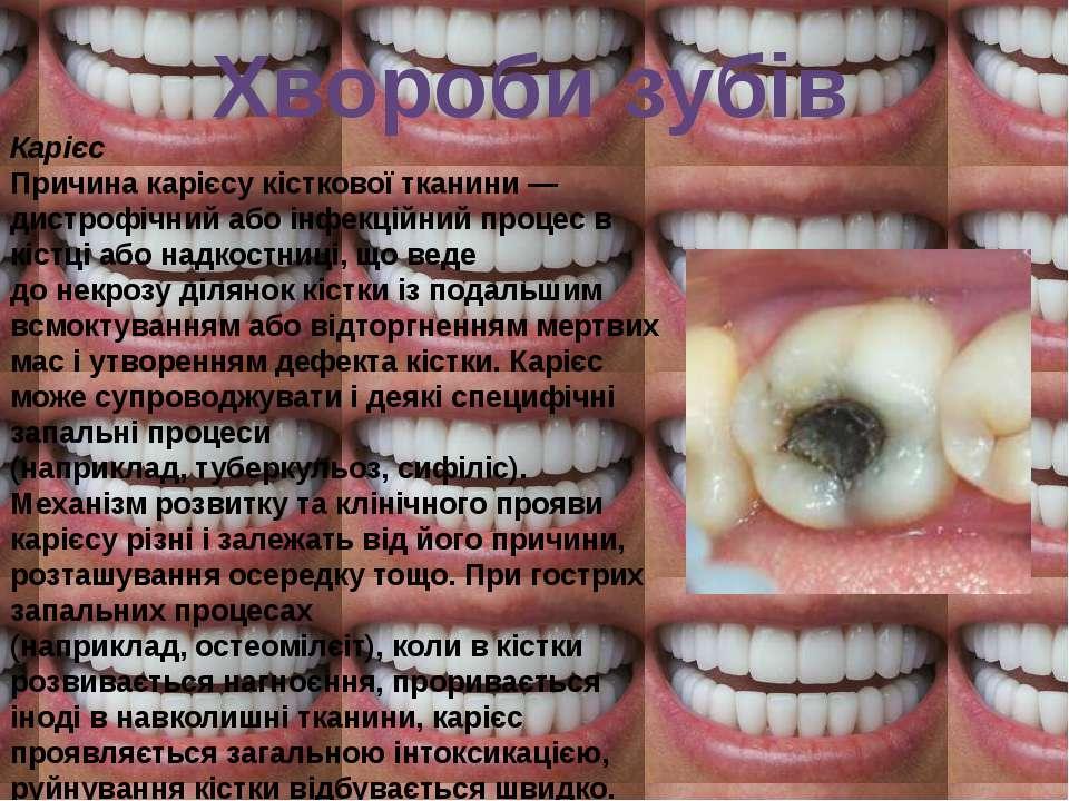 Хвороби зубів Карієс Причина карієсу кісткової тканини— дистрофічний або інф...