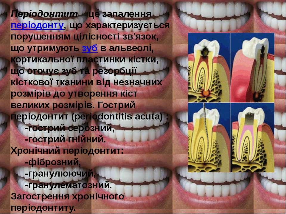 Періодонтит— це запаленняперіодонту, що характеризується порушенням цілісно...