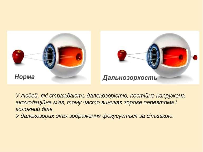 У людей, які страждають далекозорістю, постійно напружена акомодаційна м'яз, ...