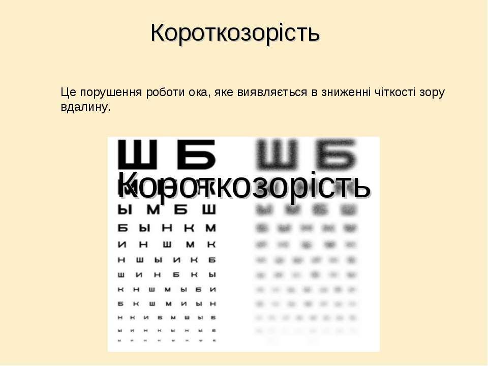 Це порушення роботи ока, яке виявляється в зниженні чіткості зору вдалину. Ко...
