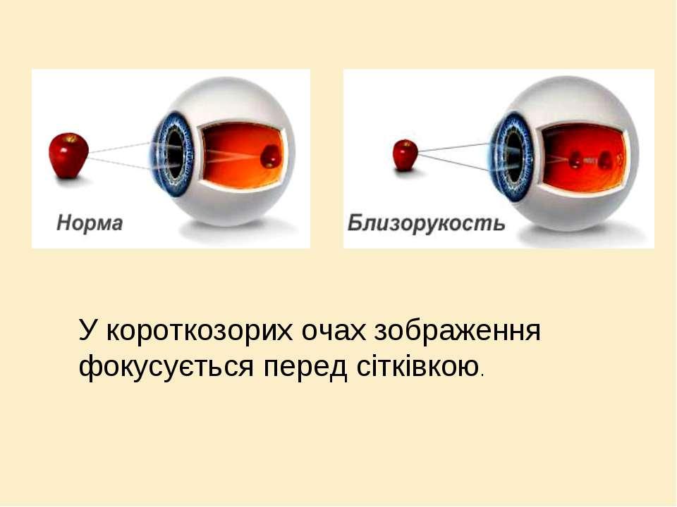 У короткозорих очах зображення фокусується перед сітківкою.
