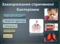 утворення аденоїдів туберкульоз бронхіт