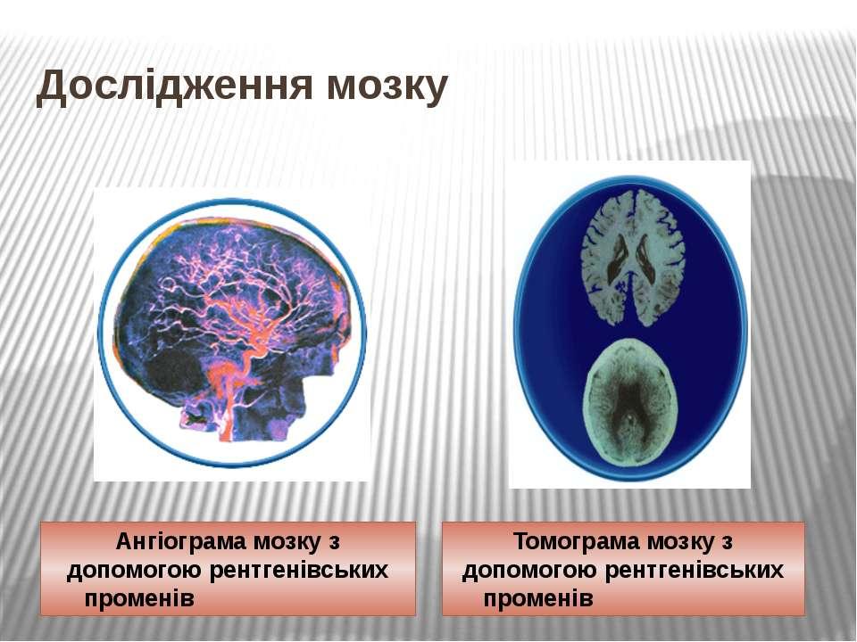 Дослідження мозку Ангіограма мозку з допомогою рентгенівських променів Томогр...