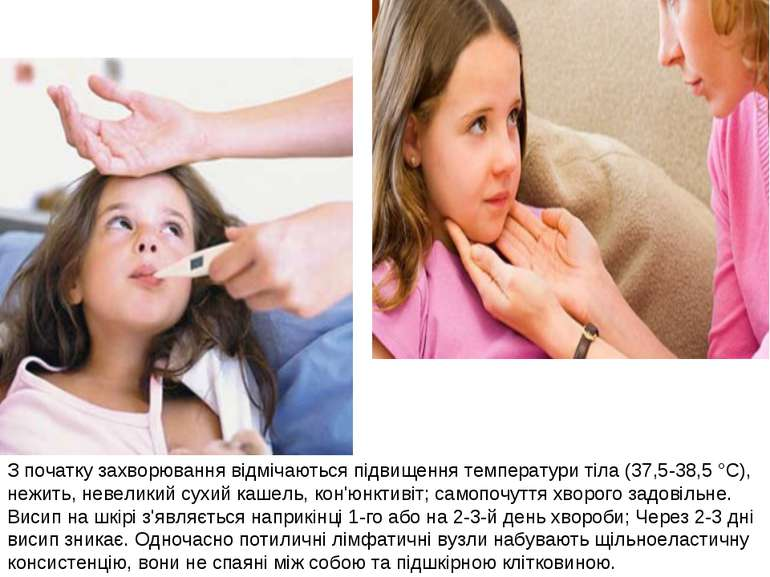 З початку захворювання відмічаються підвищення температури тіла (37,5-38,5°C...