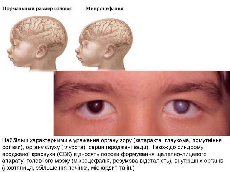 Найбільш характерними є ураження органу зору (катаракта, глаукома, помутніння...