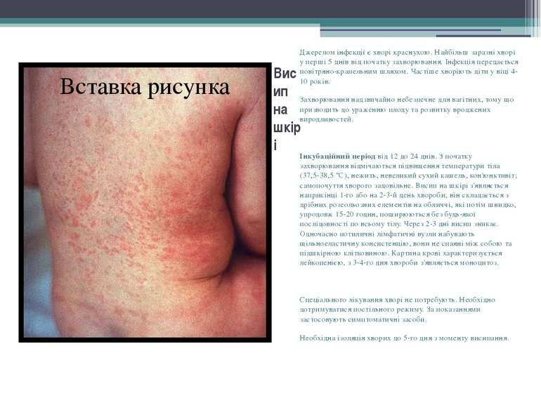 Висип на шкірі Джерелом інфекції є хворі краснухою. Найбільш заразні хворі у ...