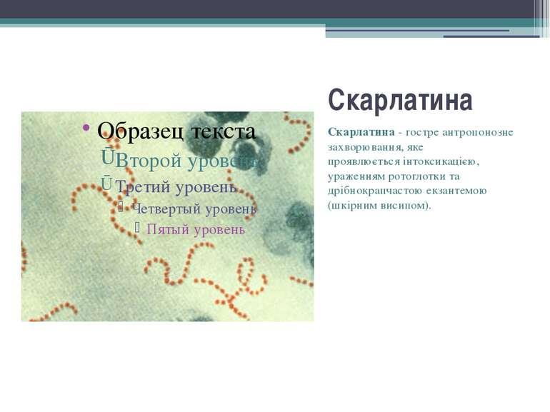 Скарлатина Скарлатина- гостре антропонозне захворювання, яке проявлюєтьсяі...