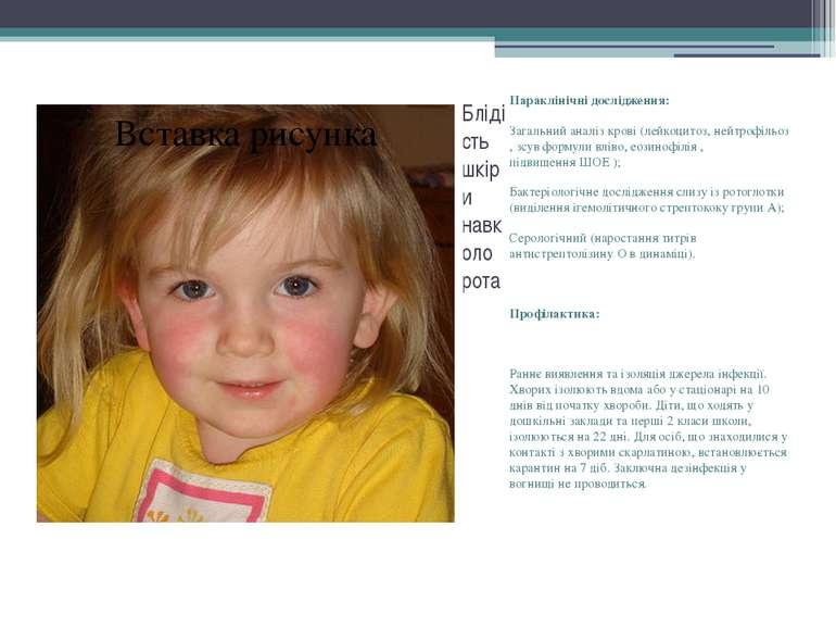 Блідість шкіри навколо рота Параклінічні дослідження: Загальний аналіз крові ...