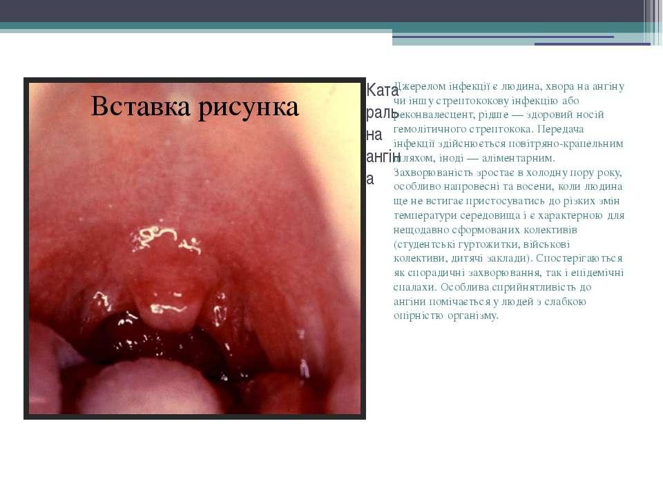 Катаральна ангіна Джерелом інфекції є людина, хвора на ангіну чи іншу стрепто...
