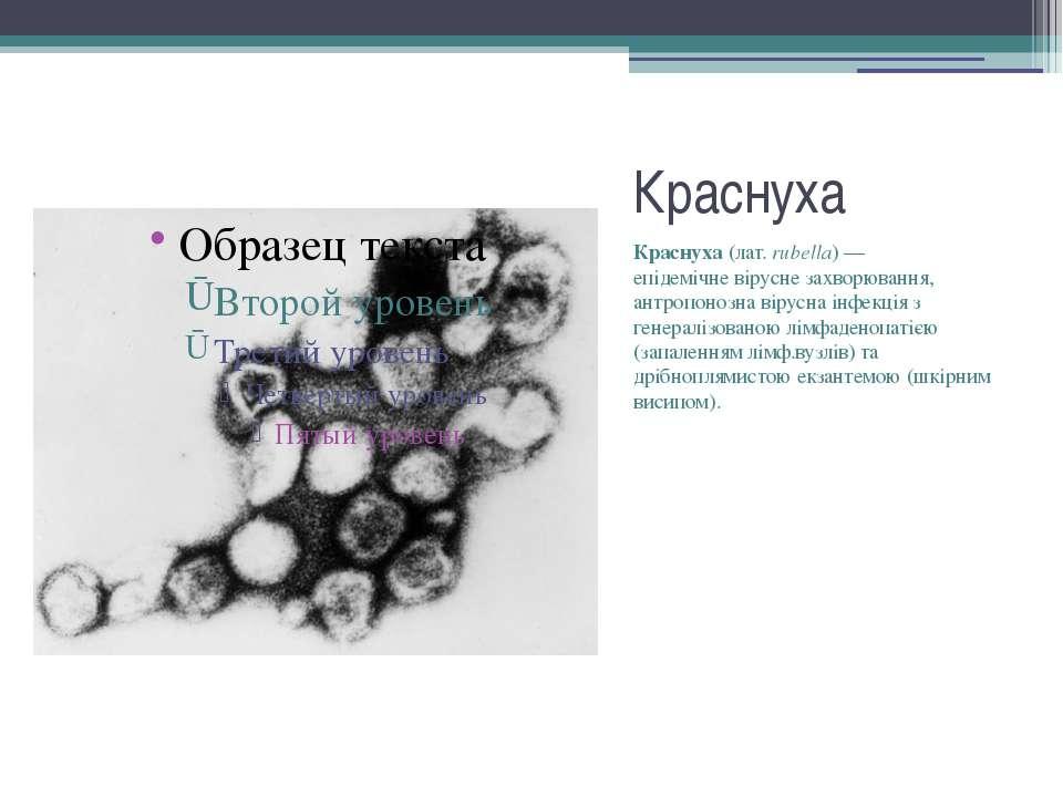 Краснуха Краснуха(лат. rubella)— епідемічневірусне захворювання, антропоно...