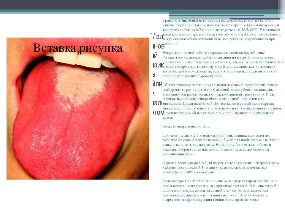 Малиновий язик із білим нальотом Тривалістьінкубаційного періодувід декільк...