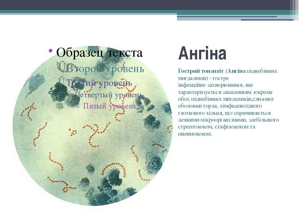 Ангіна Гострий тонзиліт(Ангінапіднебінних мигдаликів) - гостре інфекційне...